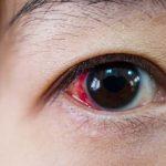 Common Eye Injuries