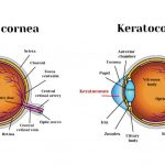 Cure for Keratoconus