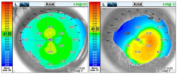 Axial Topography Image of a normal cornea with slight astigmatism, and an eye with Pellucid Keratoconus