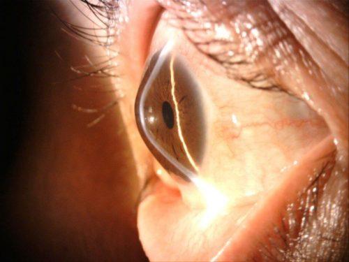 An eye with Keratoconus