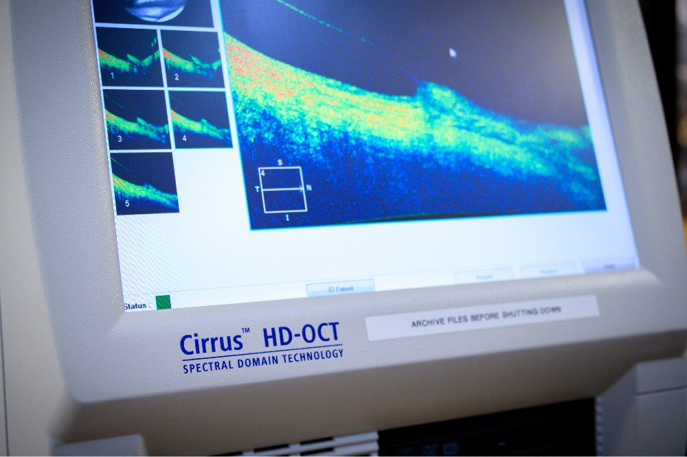 The Zeiss OCT can measure the lens on the eye to 2 microns